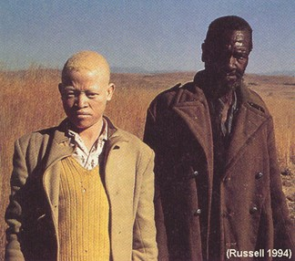 Albino with BlackMan
